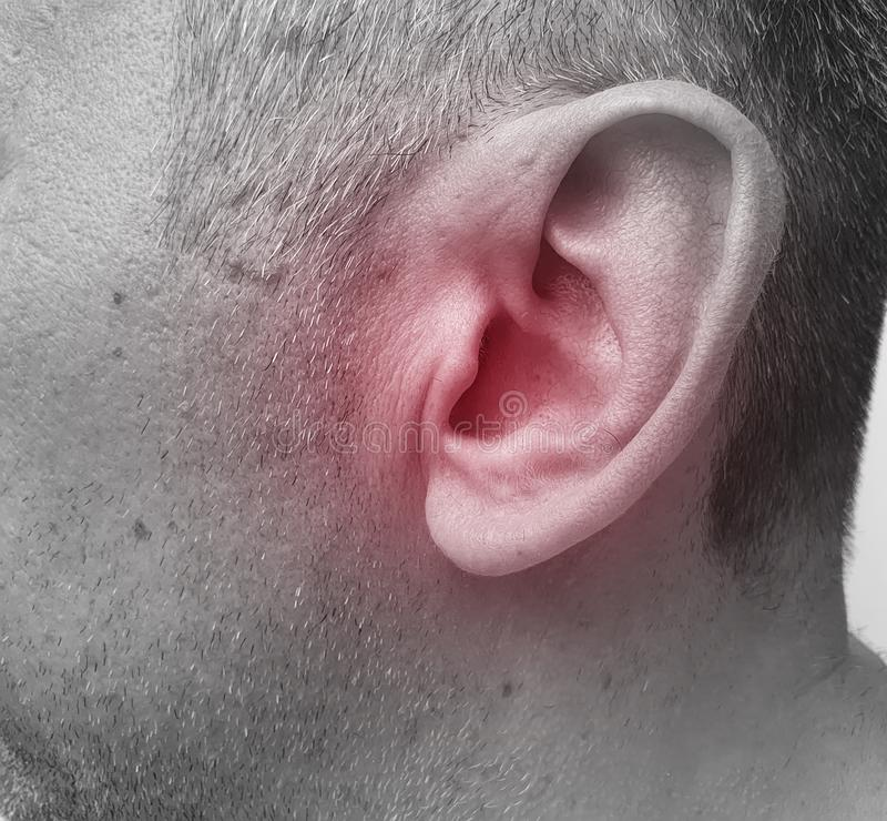 Человек ушибает его ухо симптом заболевания стоковая фотография rf