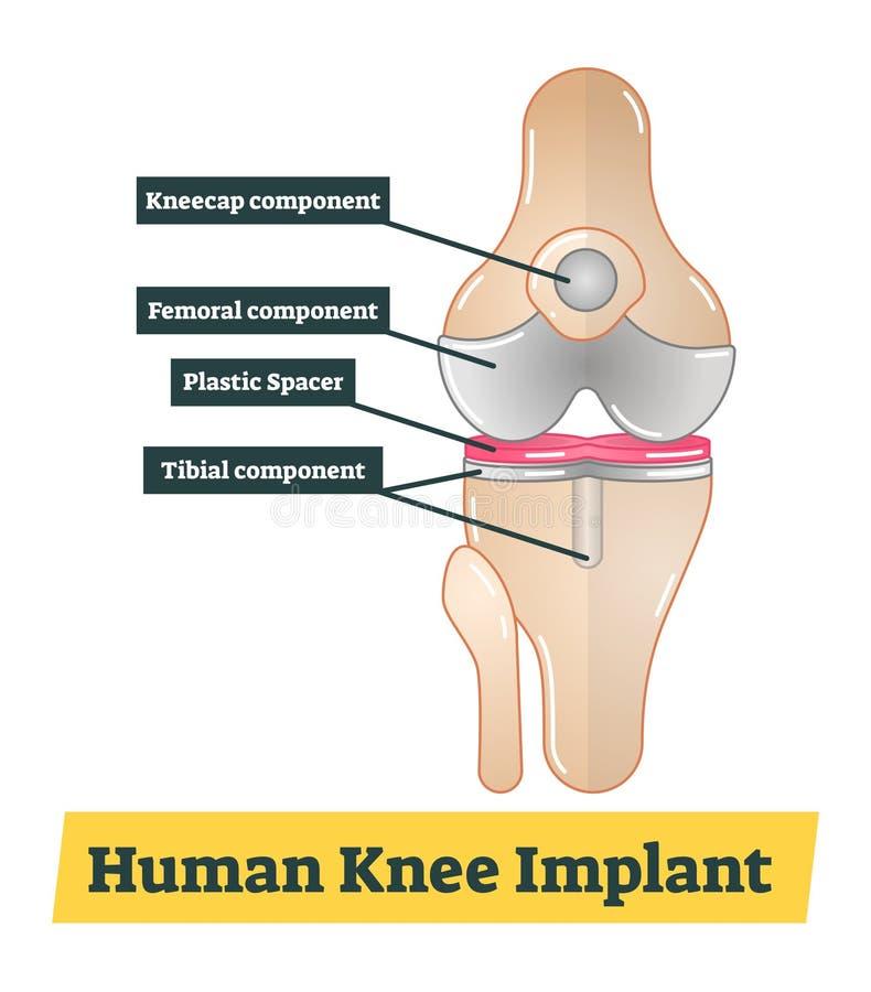Человеческая иллюстрация Implant колена иллюстрация вектора