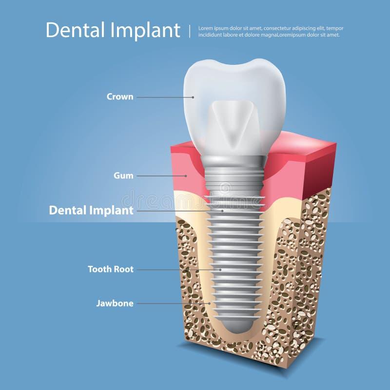 Человеческие зубы и зубной имплантат бесплатная иллюстрация