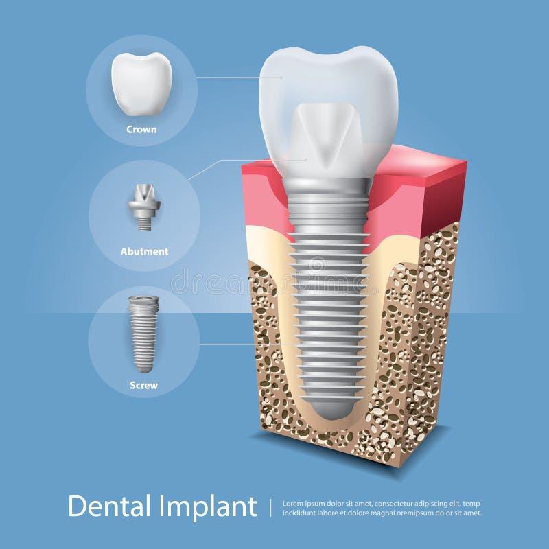 Человеческие зубы и зубной имплантат иллюстрация вектора