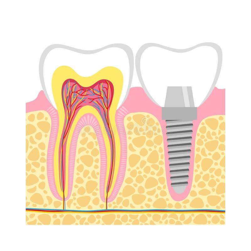 Человеческие зубы и иллюстрация вектора зубного имплантата иллюстрация вектора