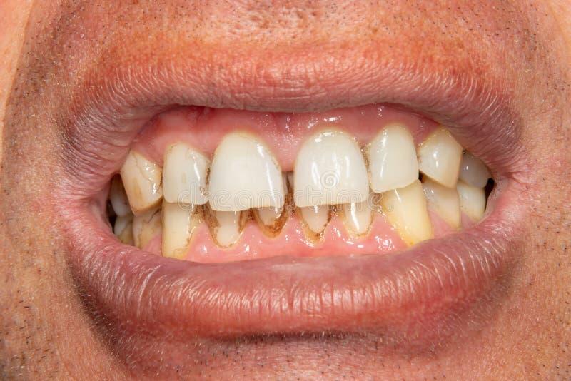 Человеческие зубы с куря металлической пластинкой и тартаром Макрос конца-вверх в зубоврачебной клинике Концепция гигиены стоковое фото