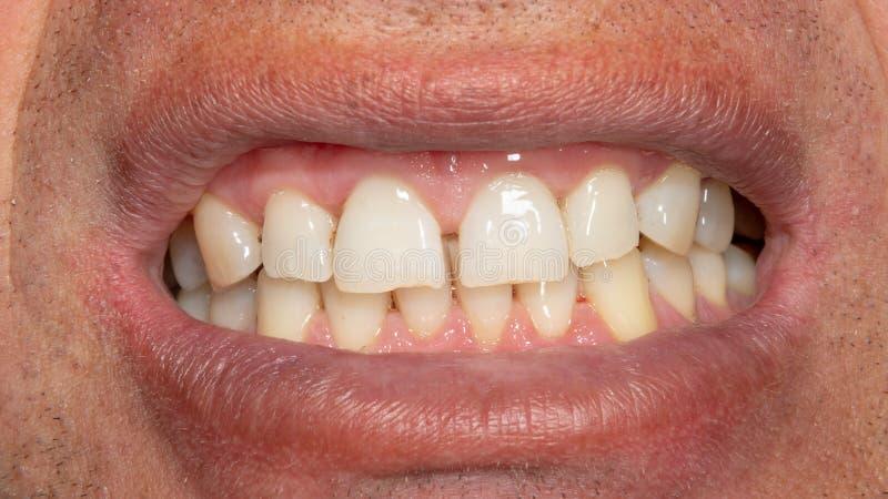 Человеческие зубы с куря металлической пластинкой и тартаром Макрос конца-вверх в зубоврачебной клинике Концепция гигиены стоковое фото rf
