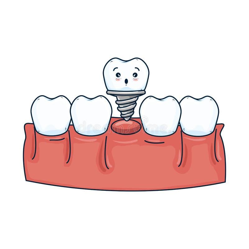 Человеческие зубы с kawaii зубного имплантата бесплатная иллюстрация