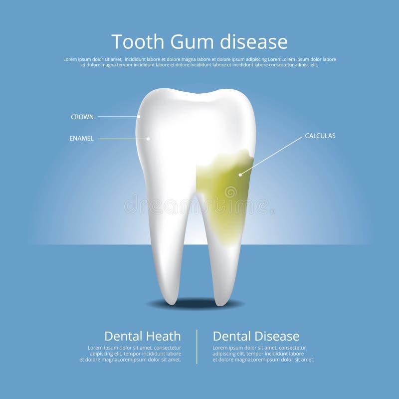 Человеческие этапы зубов иллюстрации вектора заболеванием камеди бесплатная иллюстрация