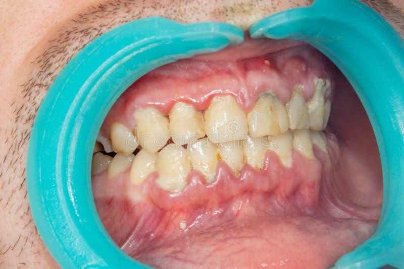 Человеческий крупный план зубов с зубоврачебной металлической пластинкой и воспалением gingi стоковые изображения rf
