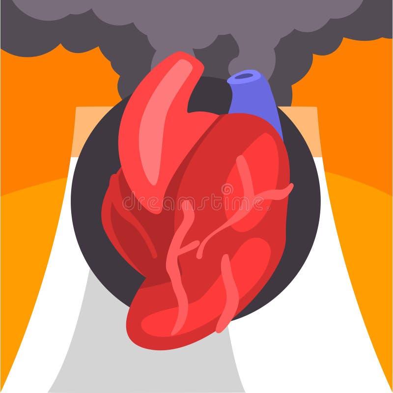 Человеческое сердце, люди страдая от точной пыли, промышленный смог, сердце на предпосылке промышленного ландшафта и облака  иллюстрация вектора