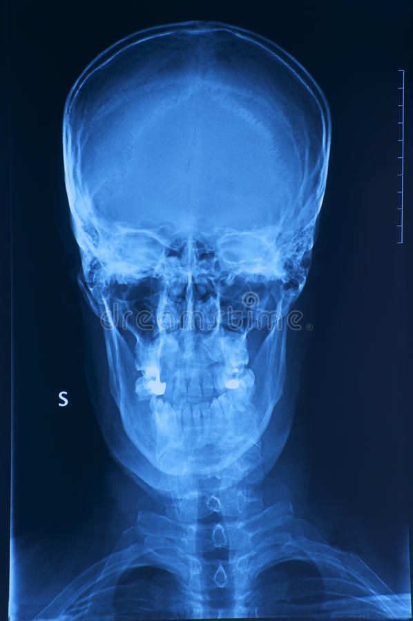 череп x луча изображения стоковые изображения