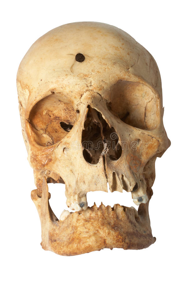 череп человека пулевого отверстия стоковое изображение