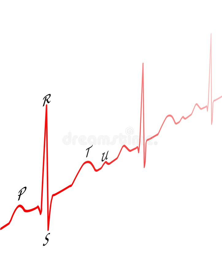 Чертеж ECG иллюстрация штока