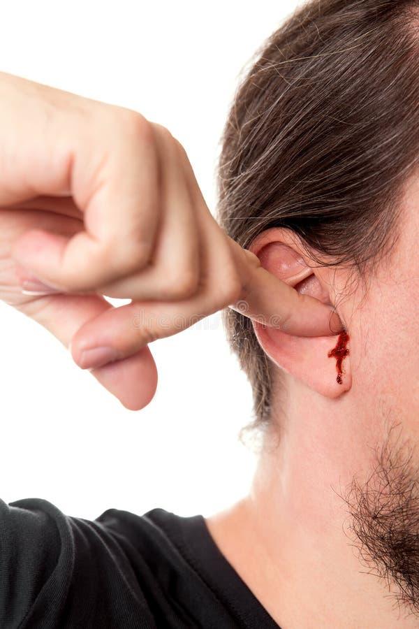 Человек крупного плана держа палец в его ухе с кровотечением уха, isola стоковая фотография