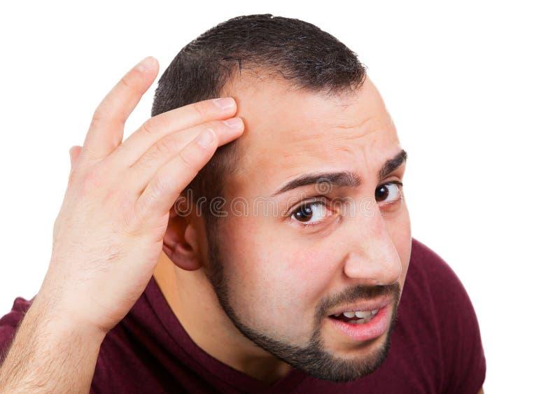 Человек теряет его волосы стоковое изображение