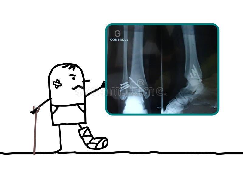 Человек шаржа раненый его нога показывая рентгеновский снимок иллюстрация штока