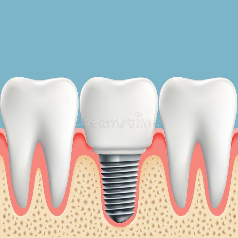 Человеческие зубы и зубной имплантат иллюстрация штока