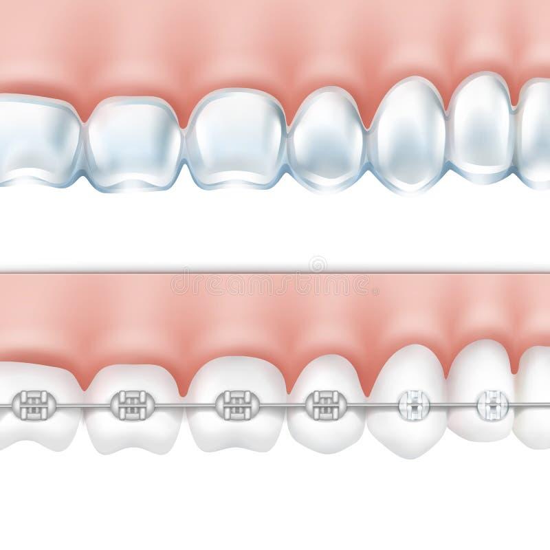 Человеческие зубы при установленные расчалки иллюстрация вектора