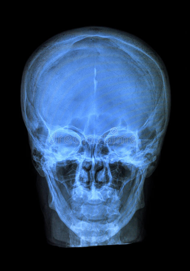 Человеческий рентгеновский снимок черепа стоковые фото