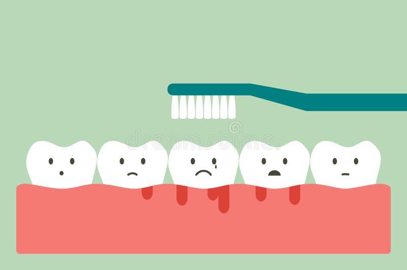 Чистя щеткой зубы с кровотечением на концепции камеди и зуба, воспаления десен или скорбута иллюстрация вектора