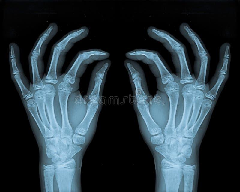 чувствительные руки стоковые изображения