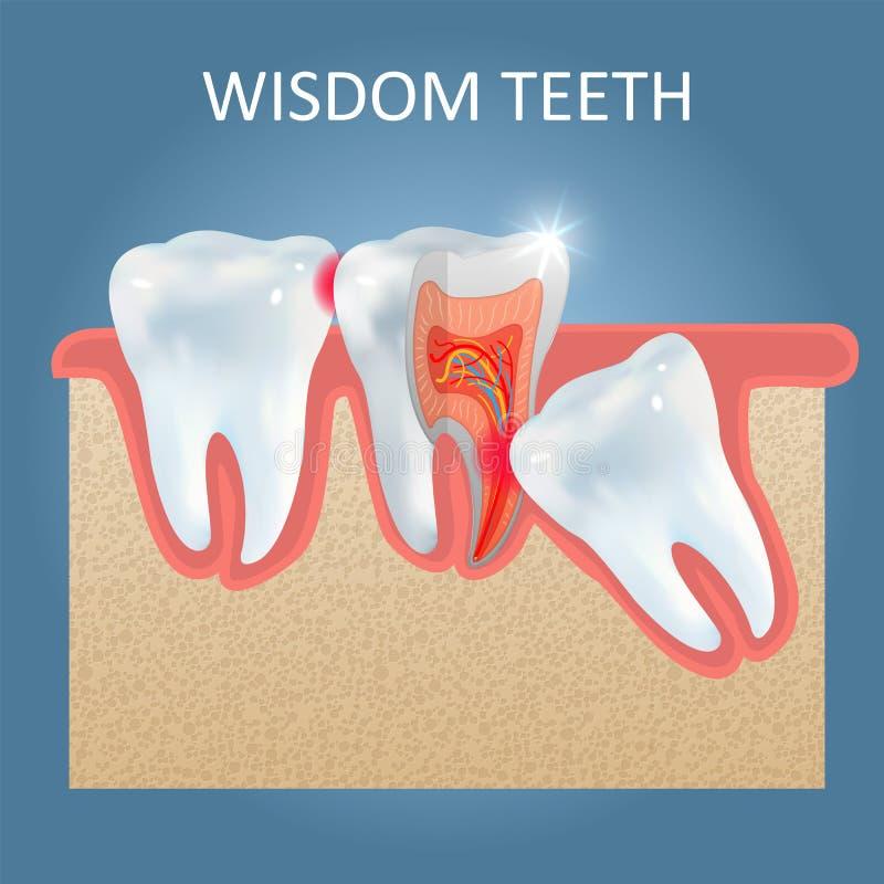 Шаблон дизайна плаката вектора проблем зубов мудрости бесплатная иллюстрация