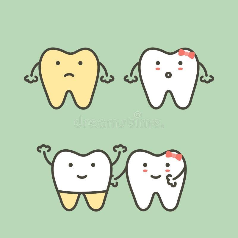 Шаг зубоврачебных облицовок - зуб забеливая, желтый к белому зубу before and after иллюстрация вектора