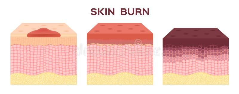 шаг ожога Нормальный к серьезной коже ожога вектор и значок бесплатная иллюстрация