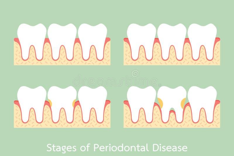 Шаг периодонтального заболевания/заболевания periodontitis/воспаления десен/камеди, зубоврачебной проблемы иллюстрация вектора