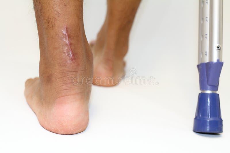 Шрам деятельности повреждения и crutchs сухожилия Ахилла стоковые изображения rf