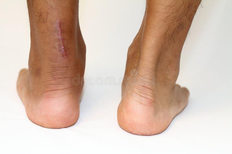 Шрам деятельности повреждения сухожилия Ахилла стоковая фотография