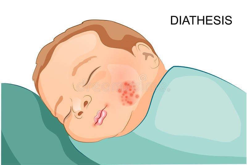 Эксудативный диатез в малыше бесплатная иллюстрация