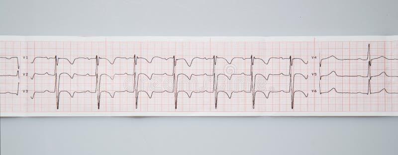 электрокардиограмма Нормальный результат electrocardiography в 3 - летнем ребенке стоковые изображения rf