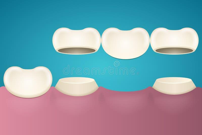 Эмаль зуба иллюстрация штока