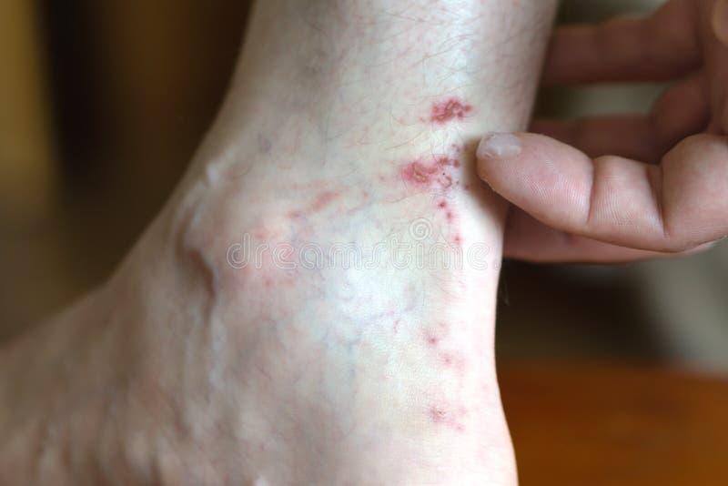 一个人应用软膏于在他的腿的一个创伤 r 免版税库存照片