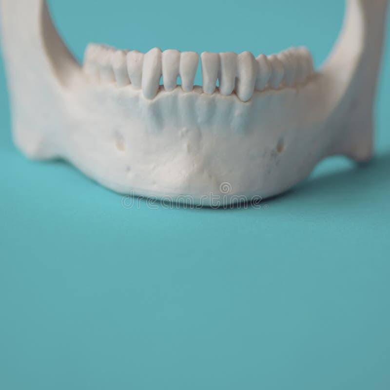 一个人的下颌 牙牙齿医疗保健的概念  免版税库存照片