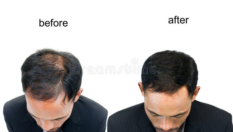 一个人的秃头 库存图片