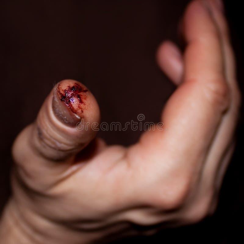 从一个受伤的手指的特写镜头有肮脏的打开裁减 图库摄影