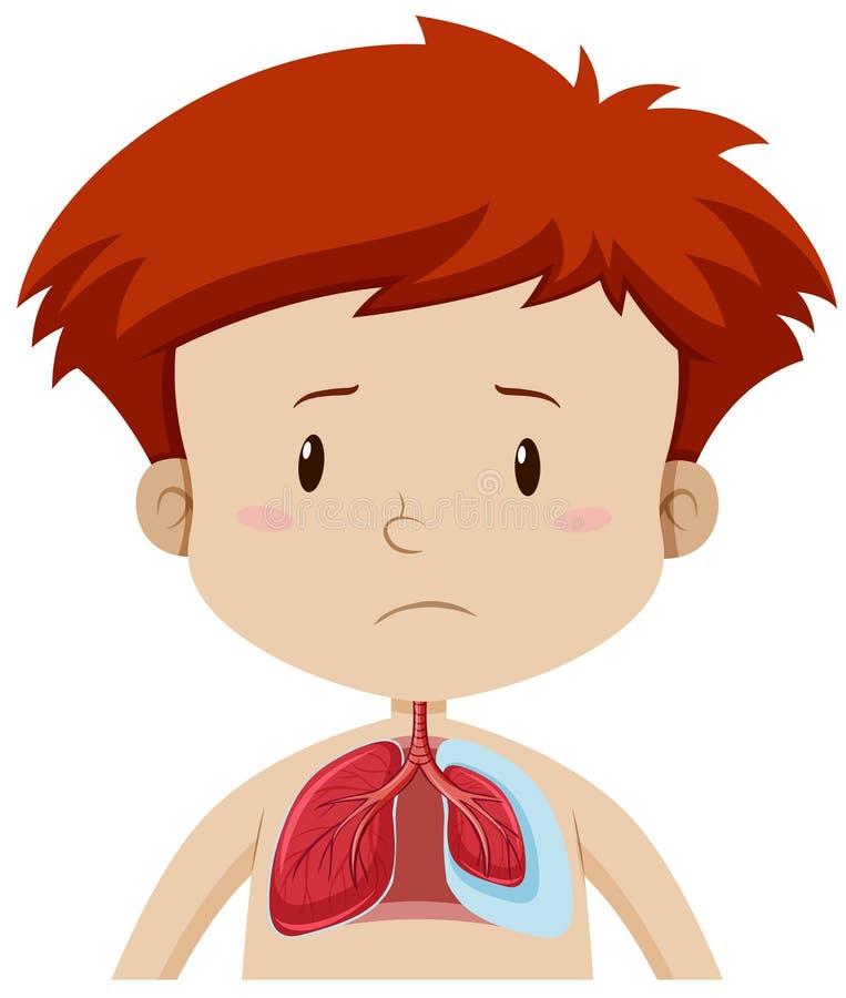 一个孩子以肺病 库存例证