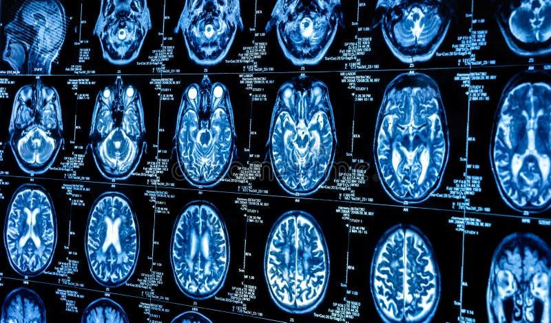 一个组人脑的计算机辅助测试扫描 库存照片