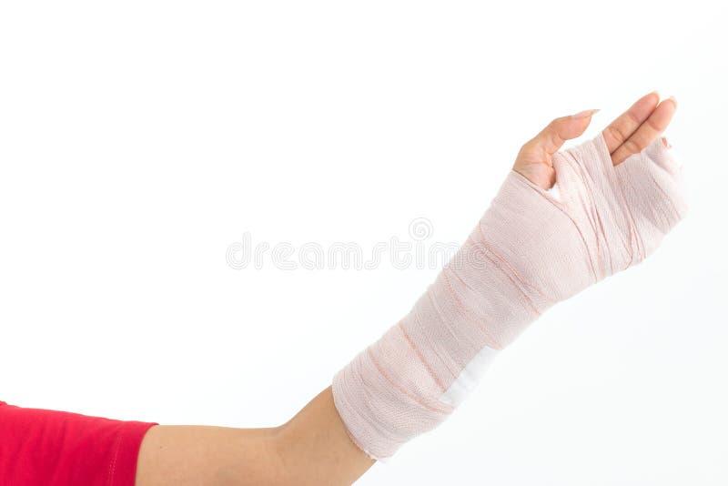 一名妇女的残破的胳膊左手有石膏模型演播室photogr的 图库摄影