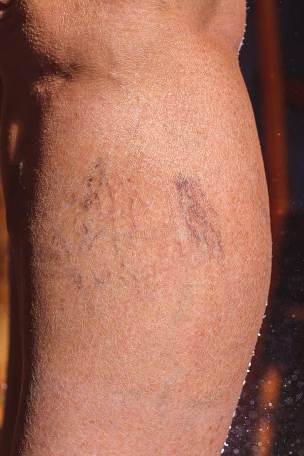 一名年长妇女的腿的特写镜头,开发静脉曲张疾病  图库摄影