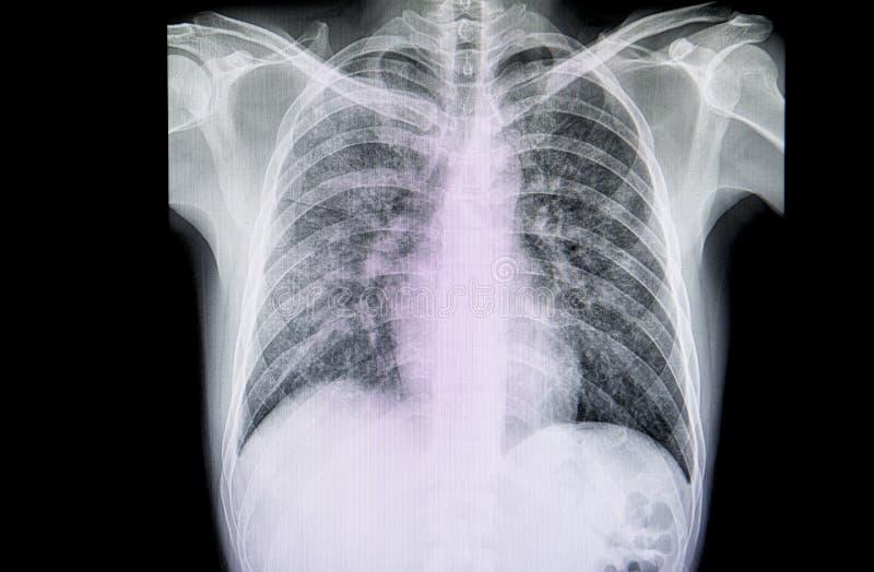 一名病人的胸部X光影片有严重肺炎的 免版税库存照片