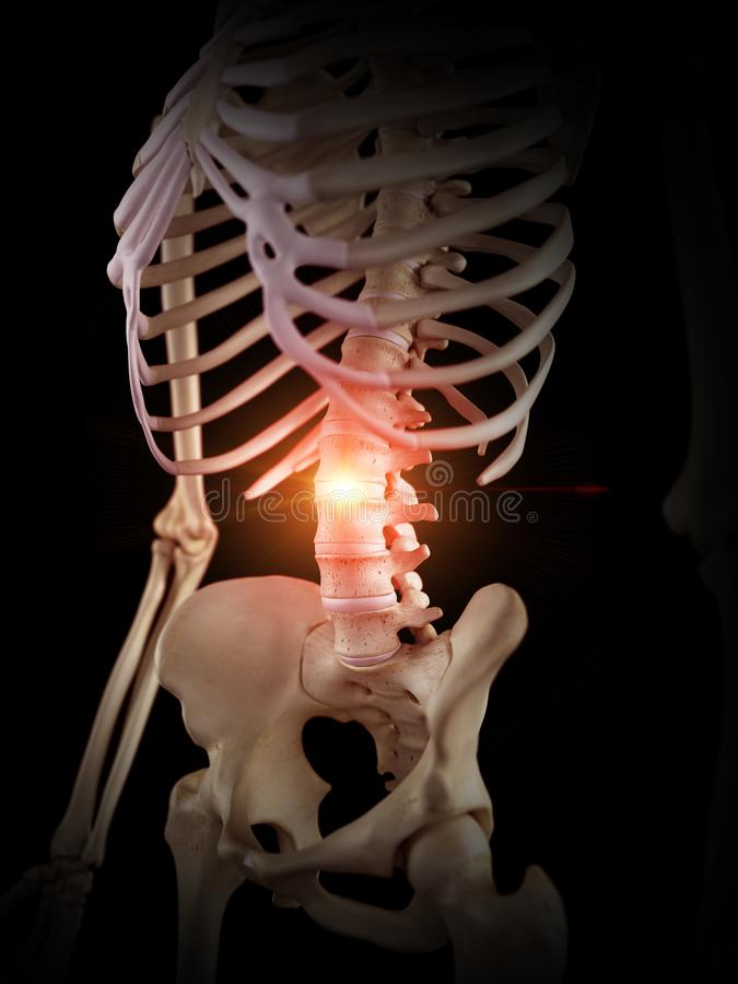 一块痛苦的脊椎 库存例证