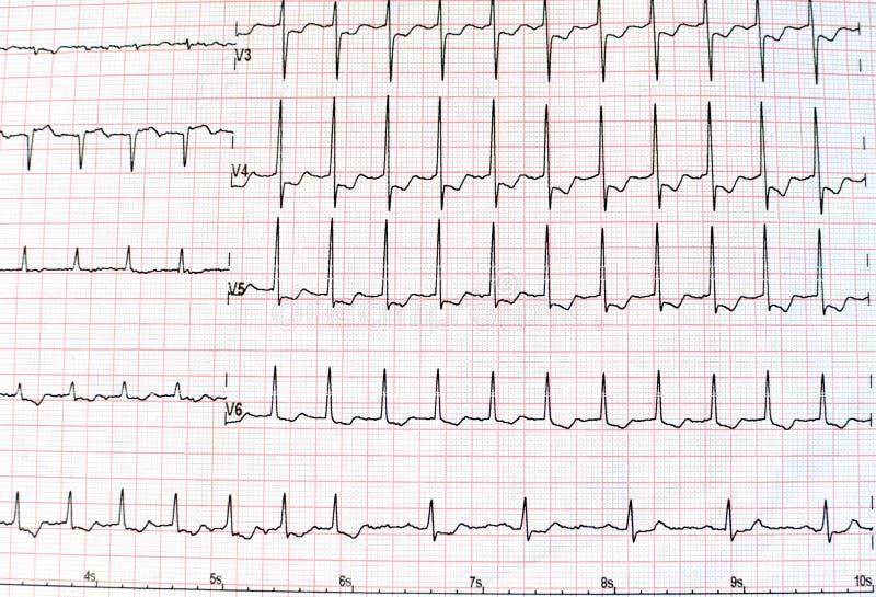 一张心电图的顶视图以医疗保健的打印的纸形式和医疗概念或者背景 EKG或ECG 免版税库存图片