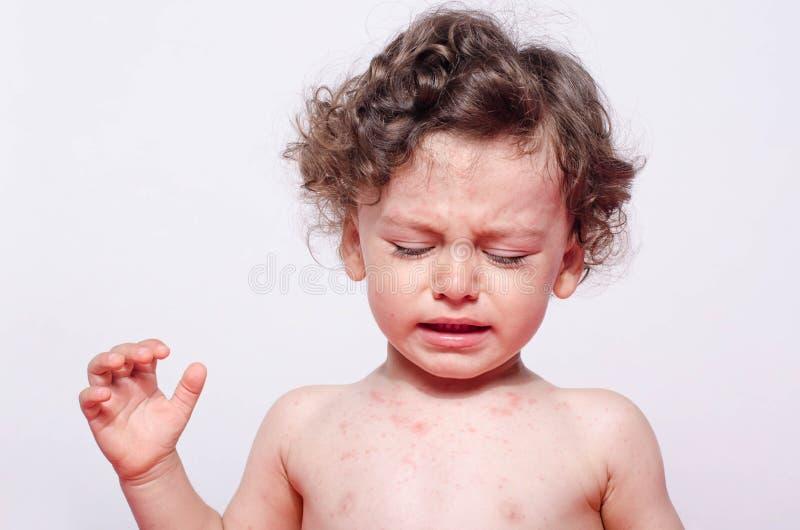 一逗人喜爱病态男婴哭泣的看的画象下来对他的斑点 免版税库存图片