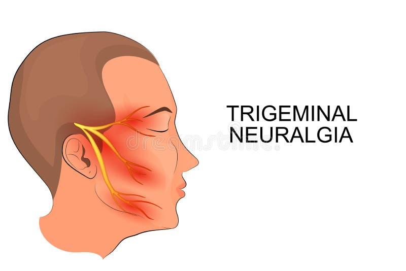 三叉神经痛 神经科学 库存例证