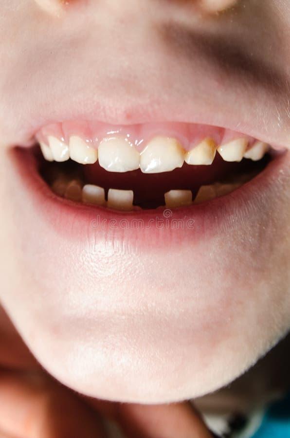 下落的牙 库存照片