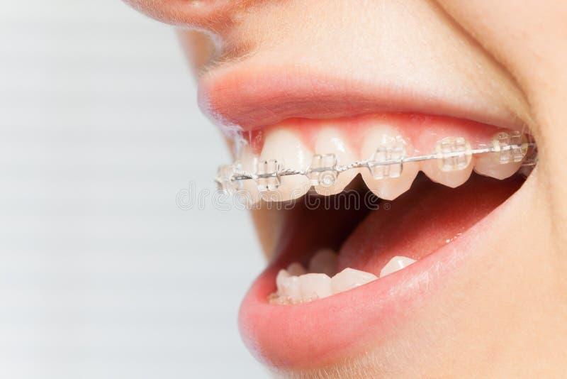 下颌的畸齿矫正术更正与清楚的托架的 免版税库存图片