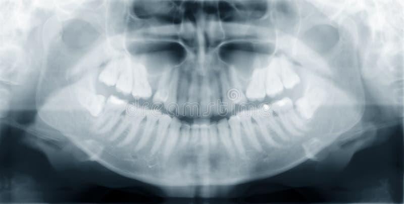 下颌 库存图片