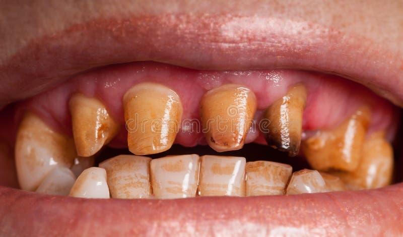 不健康的牙 库存照片