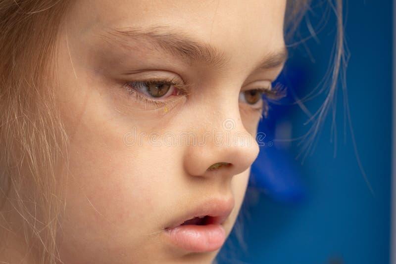 不适的孩子,在眼睛的结膜炎 免版税库存照片