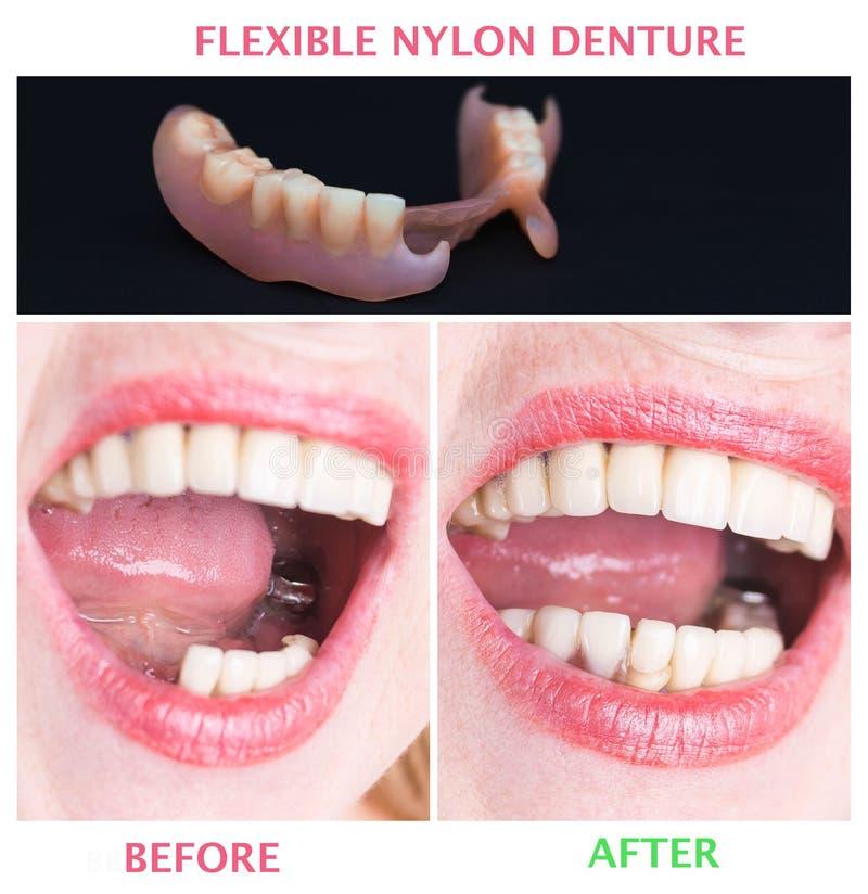 与上部和更低的假肢的牙齿修复,在治疗前后 免版税库存图片